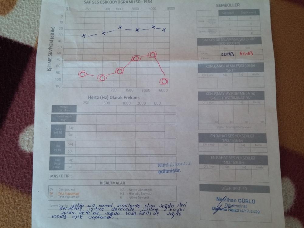 12EgBb - İşitme testinden özür oranı hesaplanması
