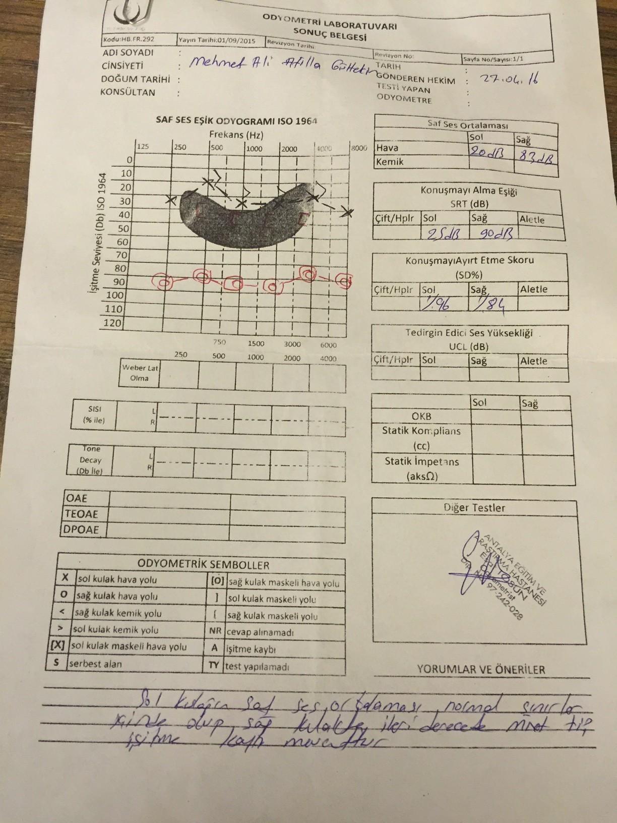 1d5JDb - İşitme testinden özür oranı hesaplanması