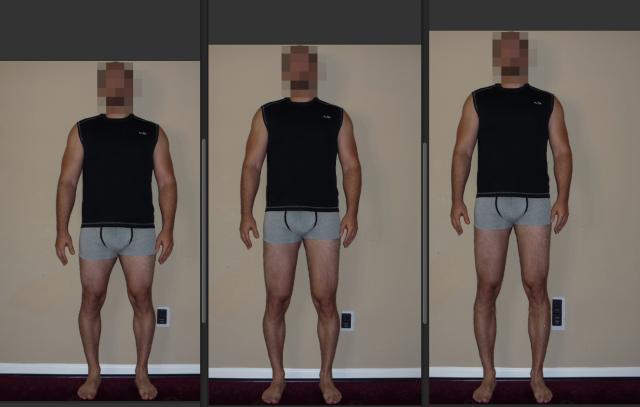 4q1QVq - Boy uzatma ameliyatını estetik bir şekilde oldum. Merak edenlere yardımcı olurum.