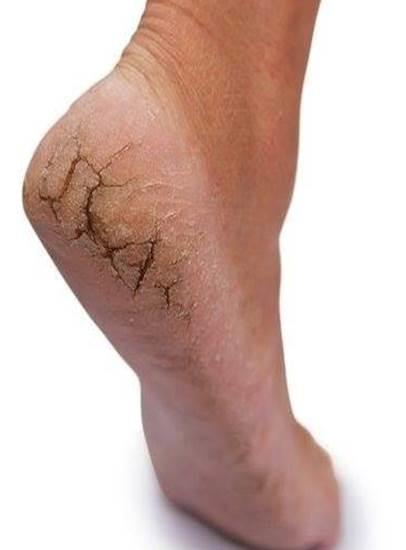Topuk �atlaklar� tedavisi nas�l yap�l�r?