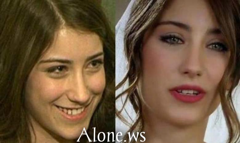 Makyajsız Türk Kadın Oyuncular