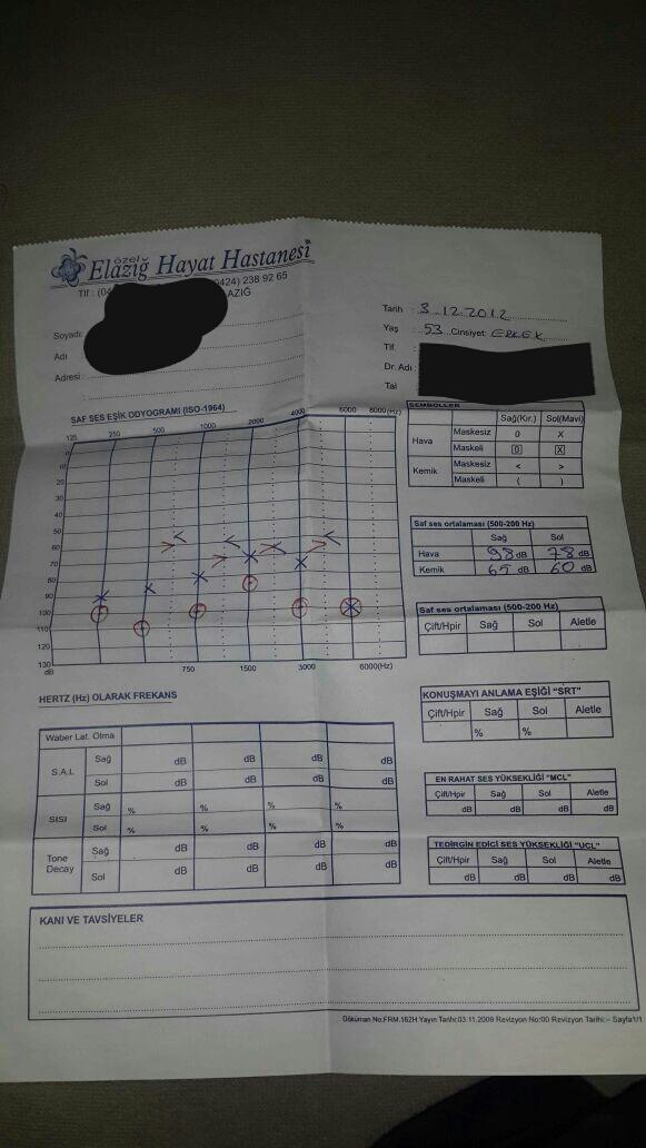 78zymW - İşitme testinden özür oranı hesaplanması