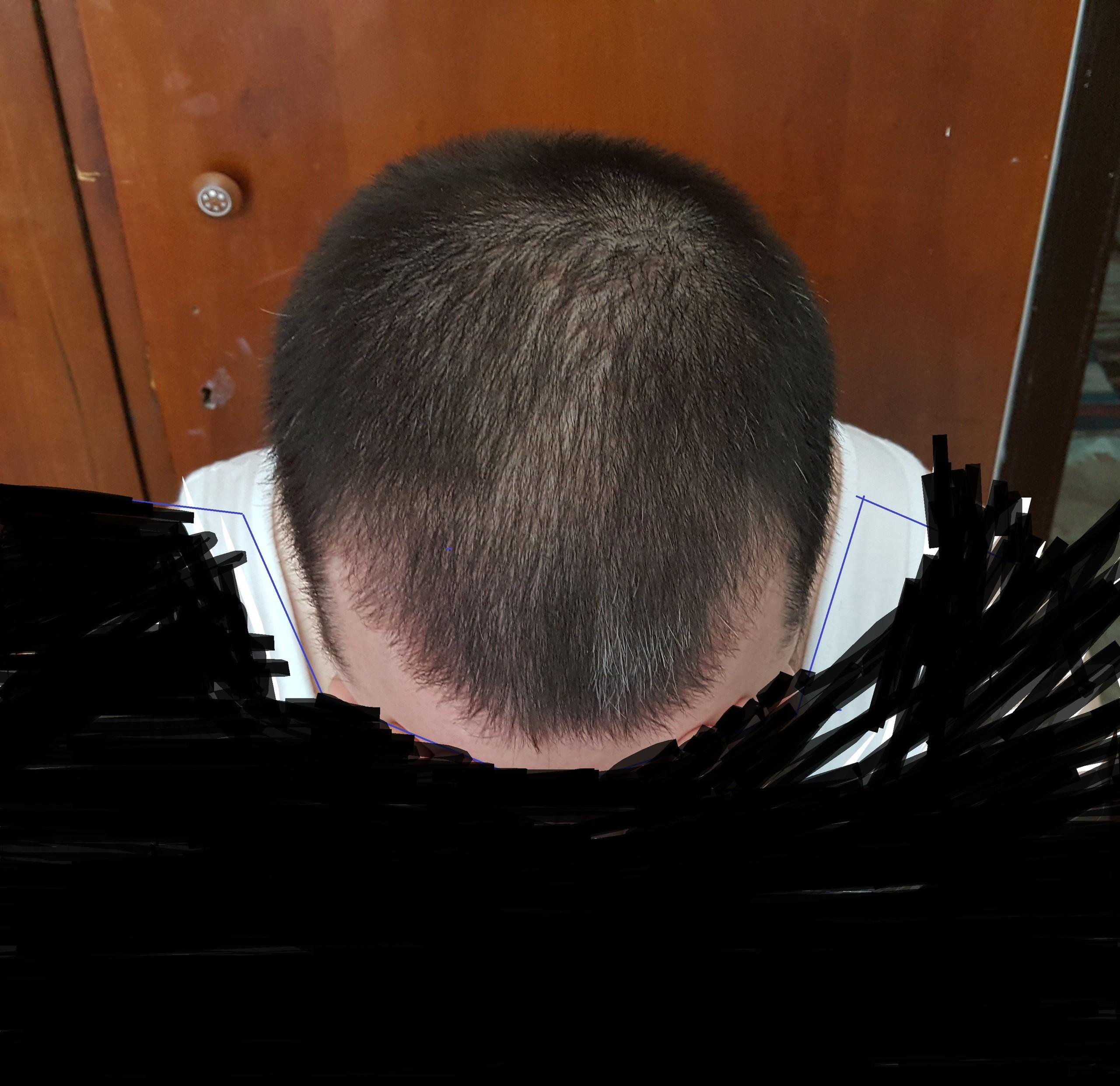 Saçlarım Dökülüyor Diyenler İçin Bir Öneri