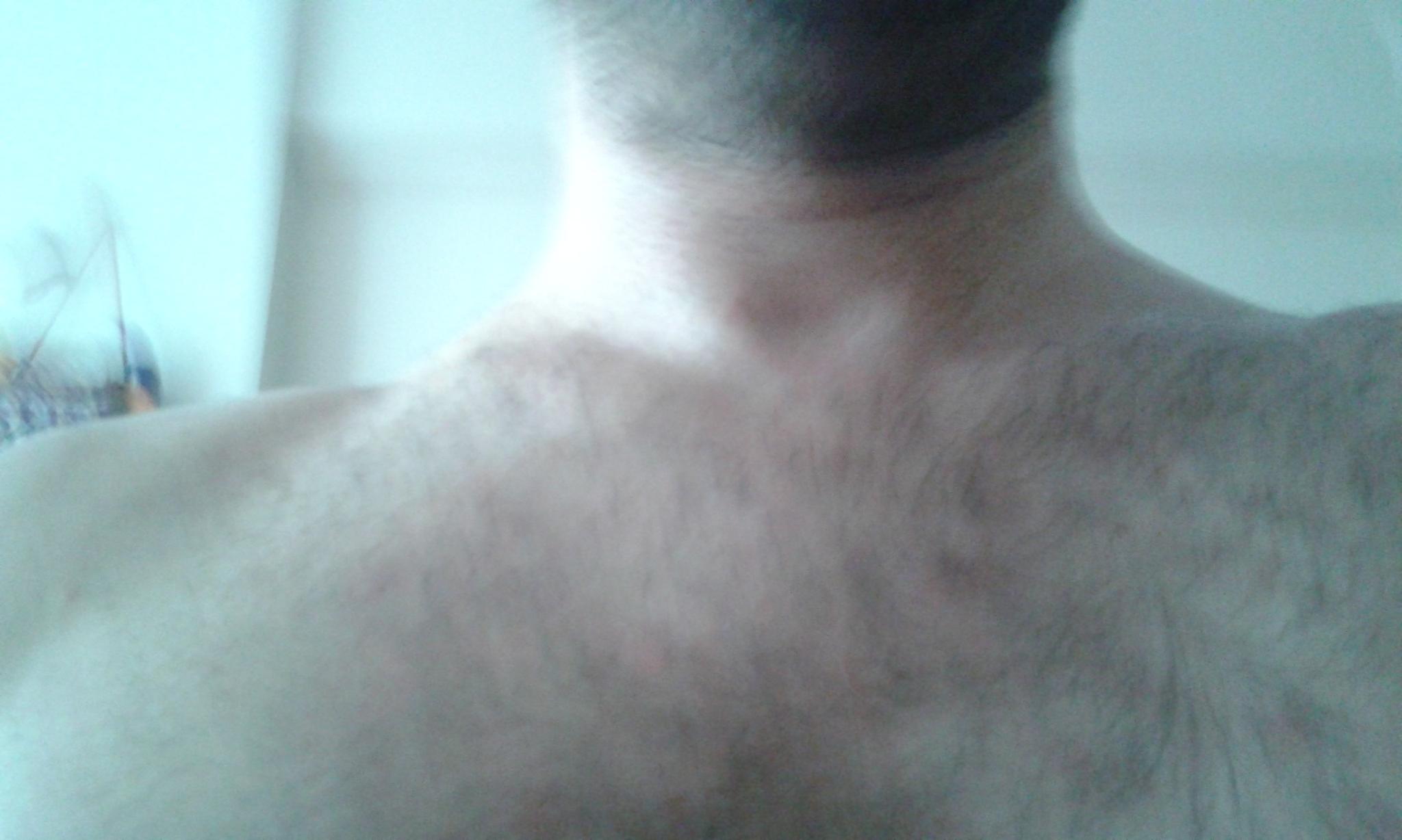 Göğüs üzerindeki kırmızı lekeler: nedenler ve tedavi