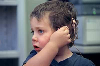 99p74r - Kulağı olmayana bile ses veriliyor: Beyin sapı Implantı