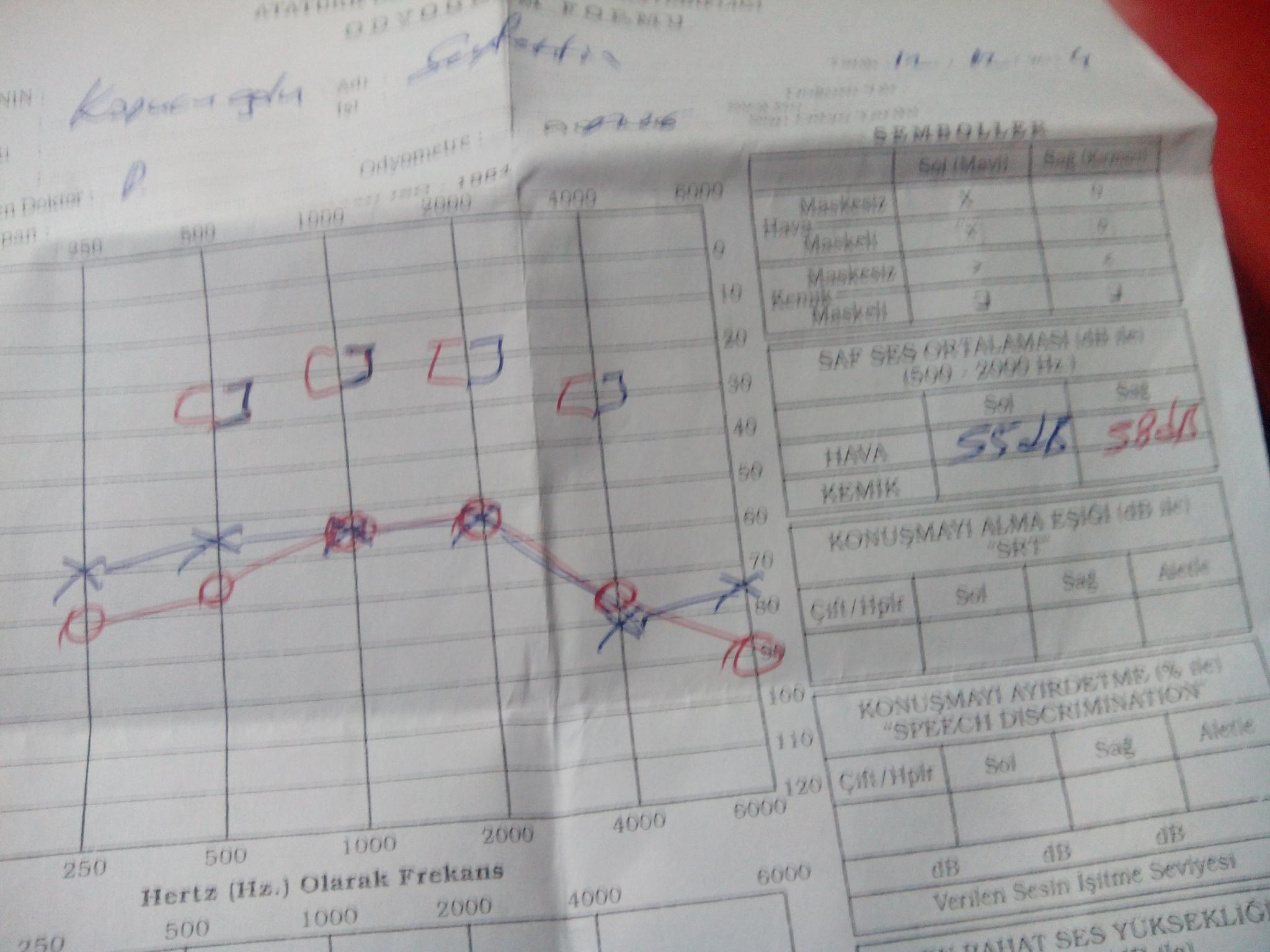 BRr5O9 - İşitme testinden özür oranı hesaplanması