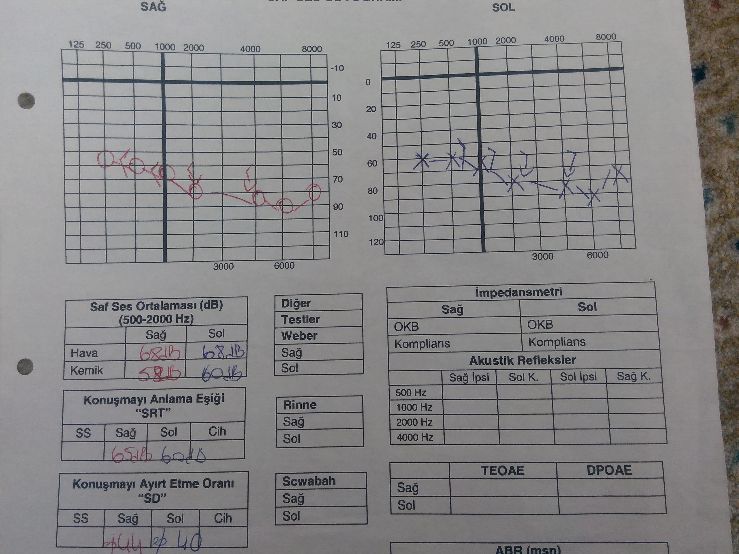 D29Rgv - İşitme testinden özür oranı hesaplanması