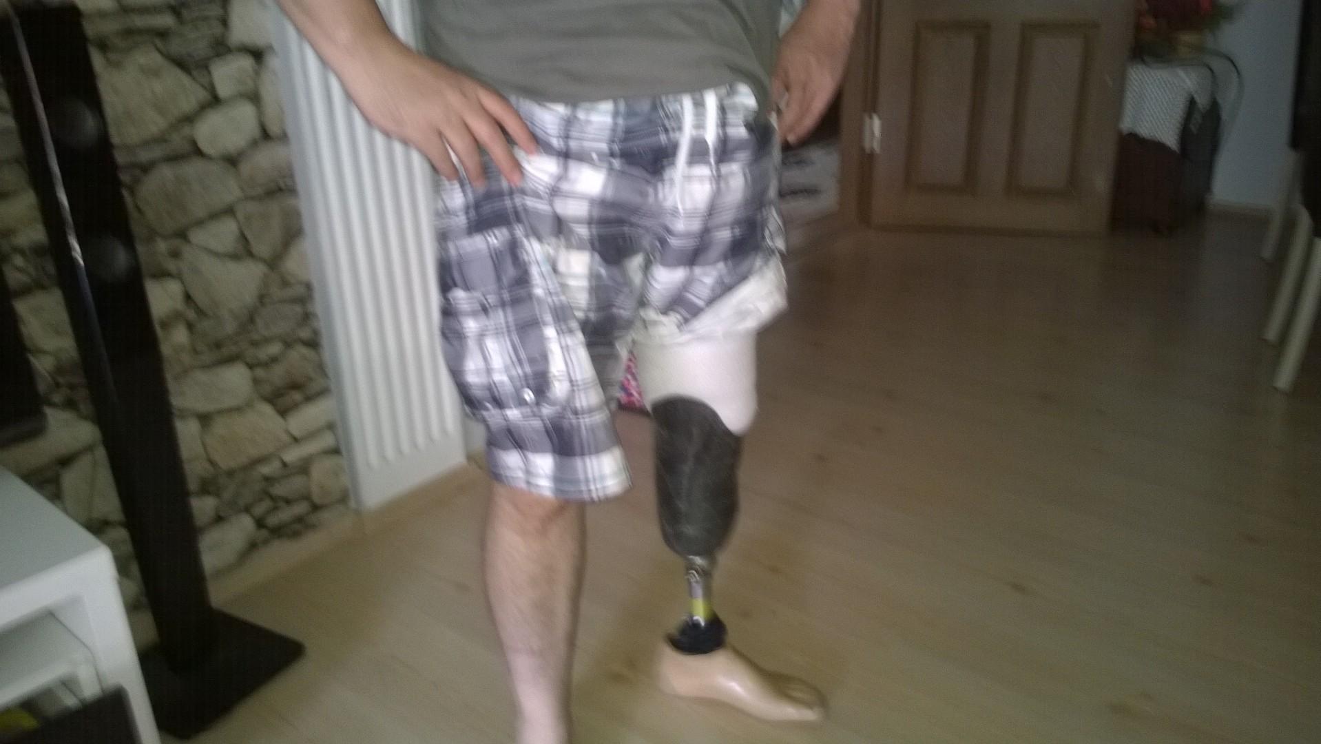 DR7OLv - Kendi protezimizi kendimiz yapabilir miyiz sorusunun cevabını arıyorum..?