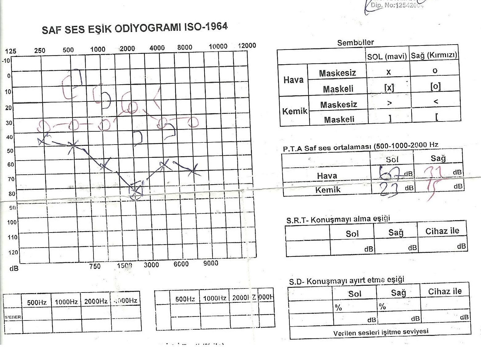 Dkz76z - İşitme testinden özür oranı hesaplanması