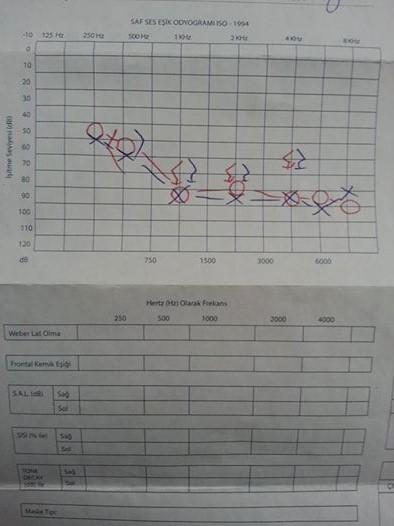 E8aGoB - ��itme testinden �z�r oran� hesaplanmas�