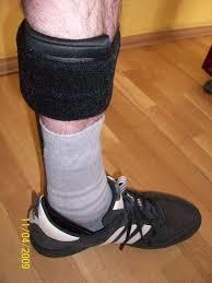 Gb7b8N - Düşük ayak sorunu için ameliyat veya tedavi var mı?