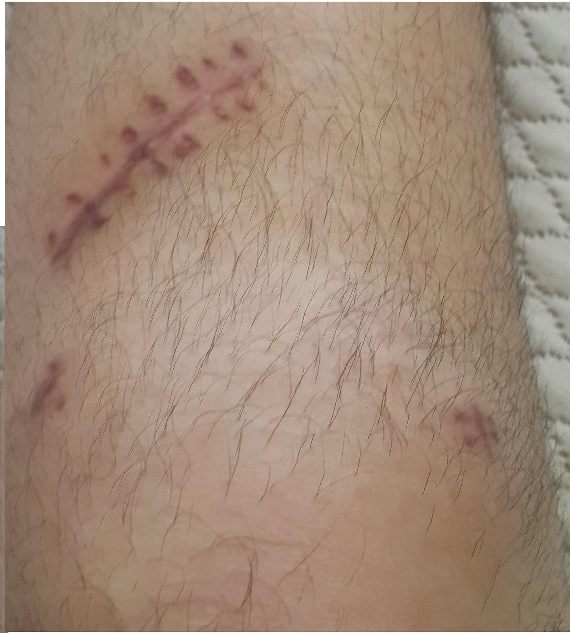 Bacağımda Kırmızı Kabartı