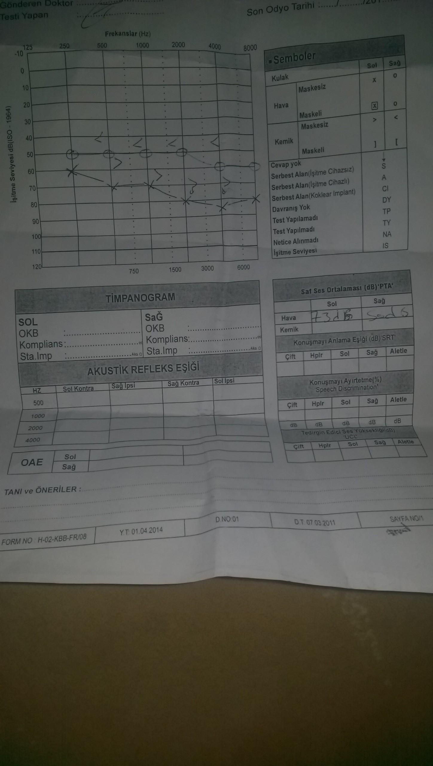 QZ14b3 - ��itme testinden �z�r oran� hesaplanmas�