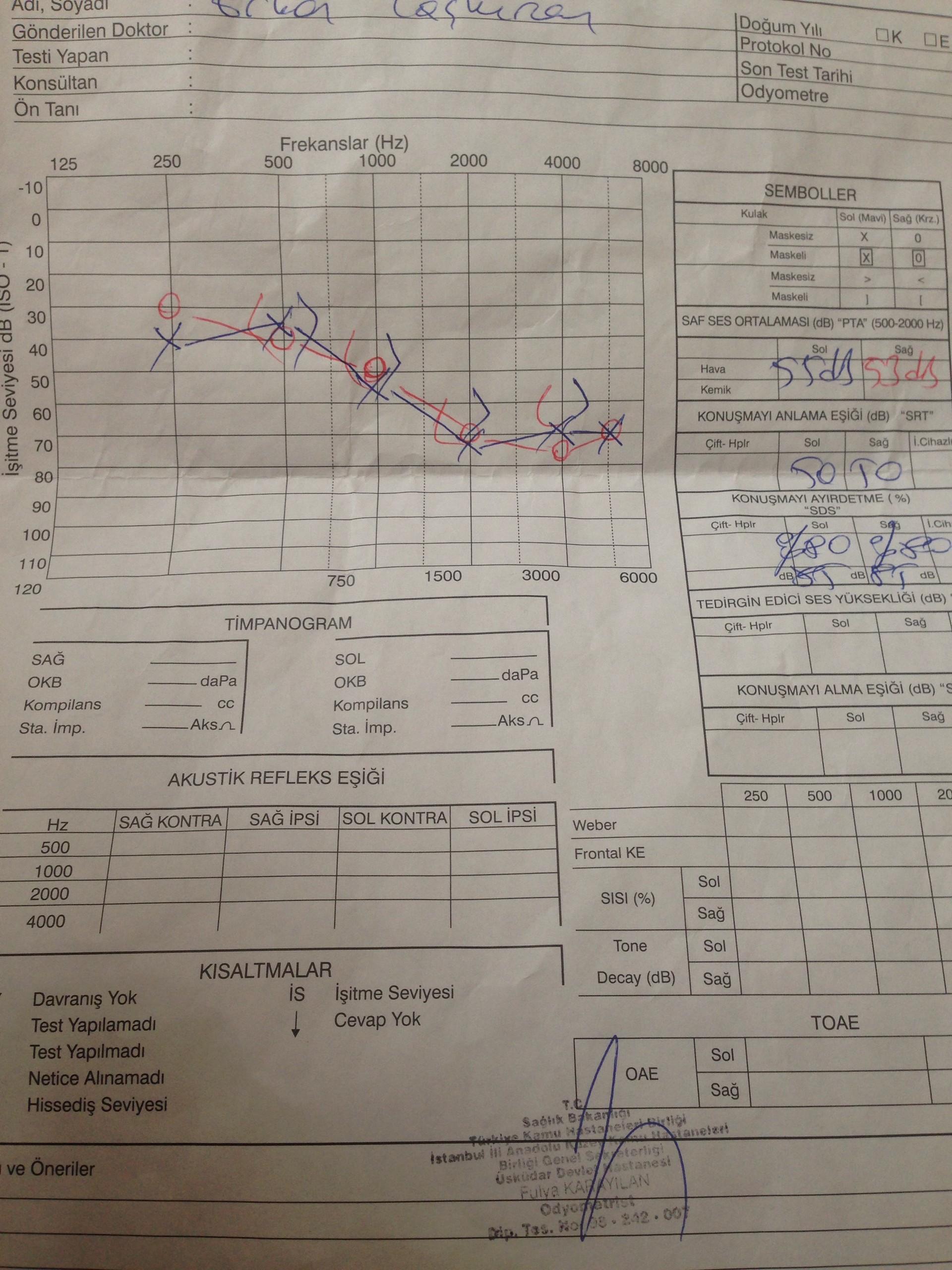 RVjV66 - İşitme testinden özür oranı hesaplanması