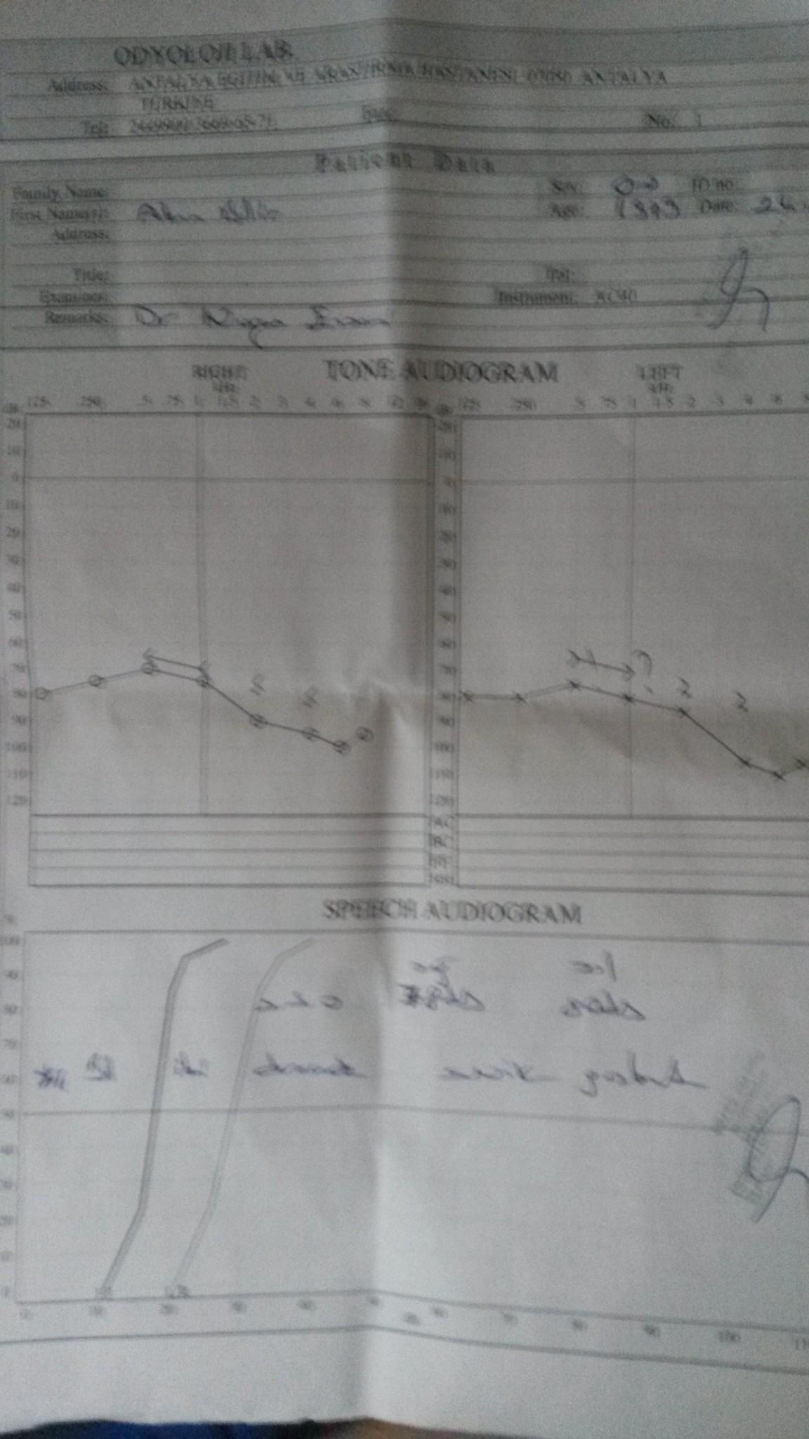 WV77dL - İşitme testinden özür oranı hesaplanması