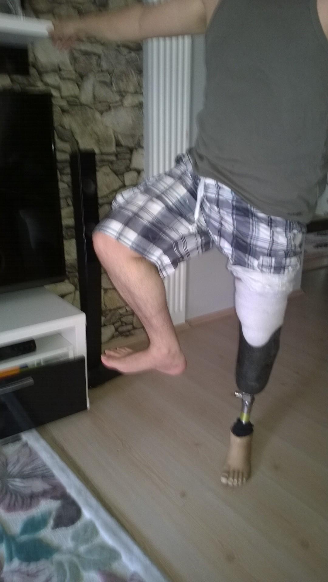 XoPba7 - Kendi protezimizi kendimiz yapabilir miyiz sorusunun cevabını arıyorum..?