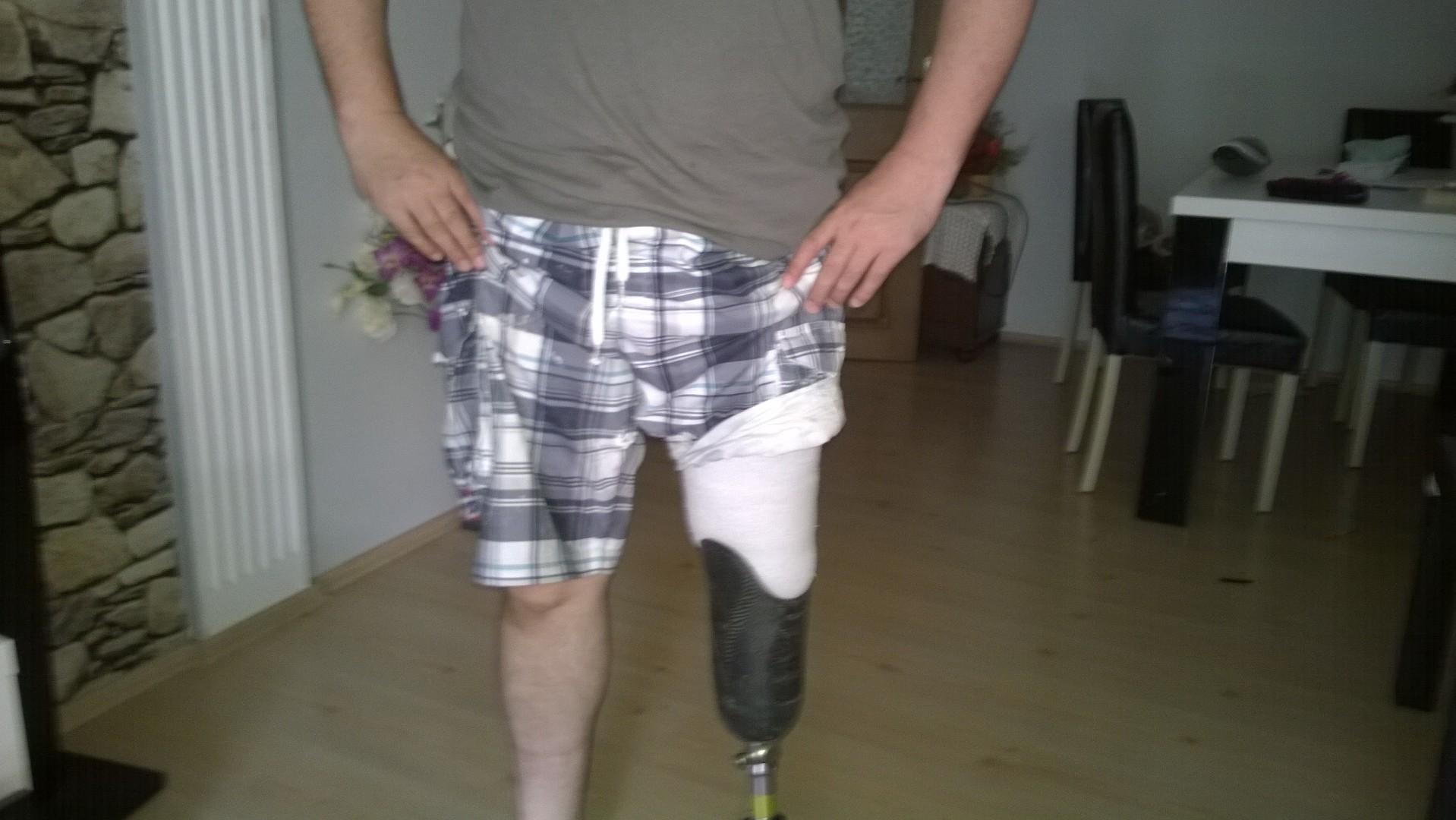 XoPbnk - Kendi protezimizi kendimiz yapabilir miyiz sorusunun cevabını arıyorum..?