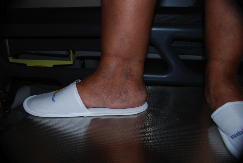 ZkvG5g - Sol-sağ ayak derin venöz yetmezliği ile engelli statüsünde araç alan var mı?