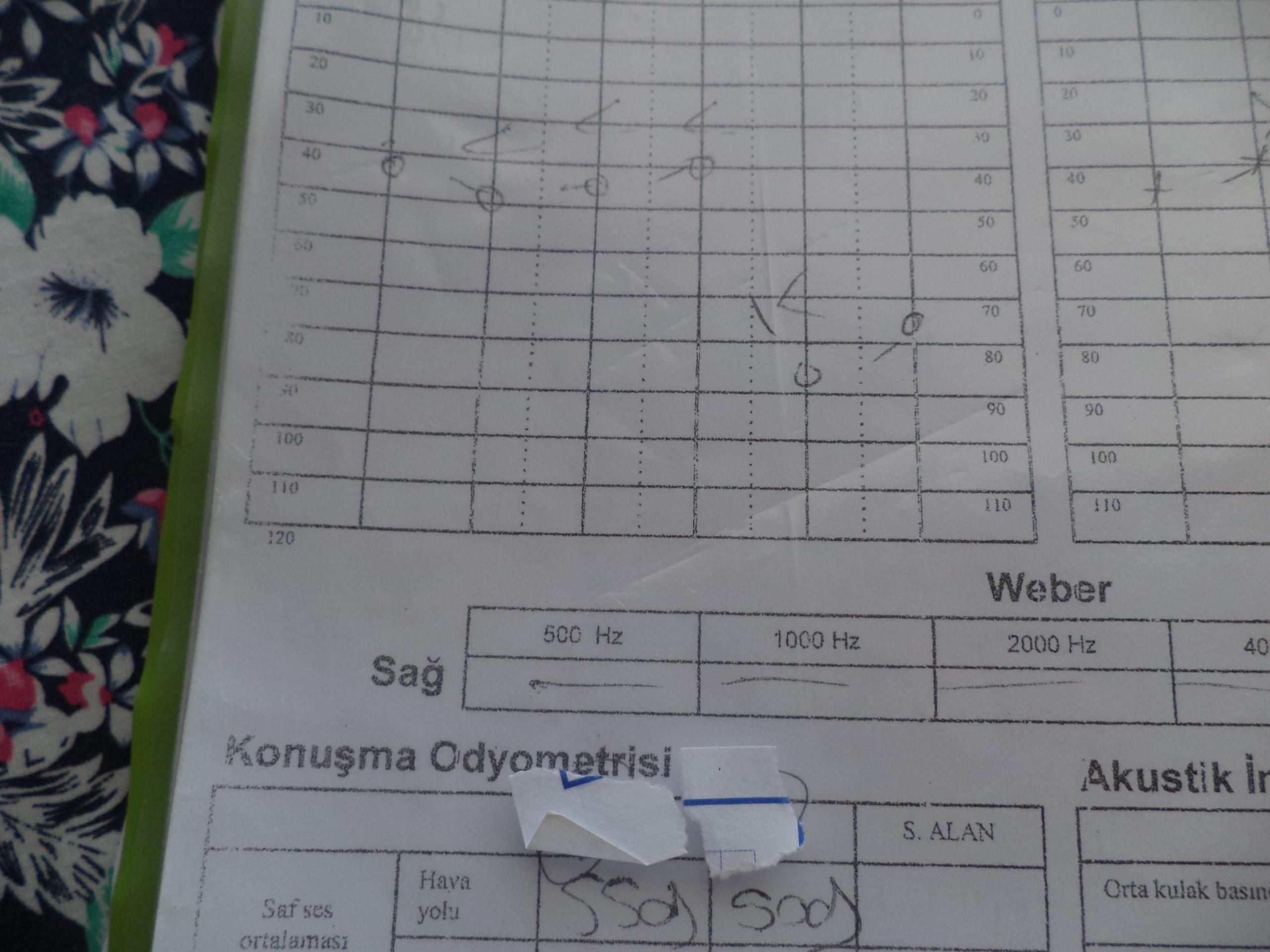 bbobdm - Karaciğer nakli, KBB, Kardiyoloji, Kalp ve damar ameliyatı, ortopedik rahatsızlık..?