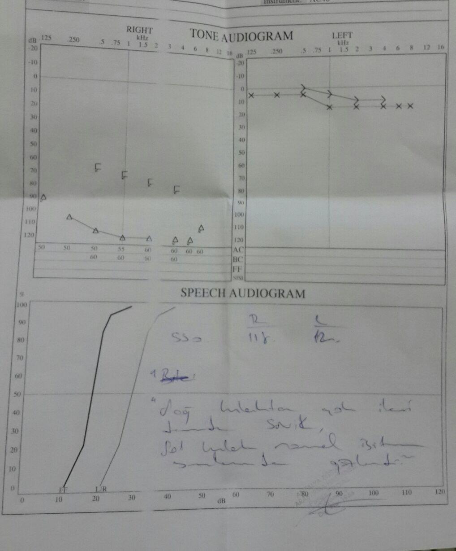 g55bN0 - İşitme testinden özür oranı hesaplanması