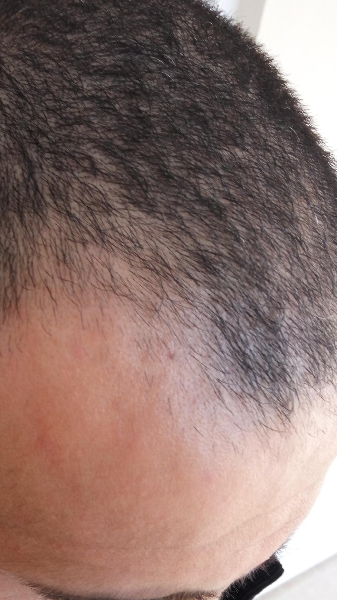 Topikal soru: Nasıl saç dökülüyor
