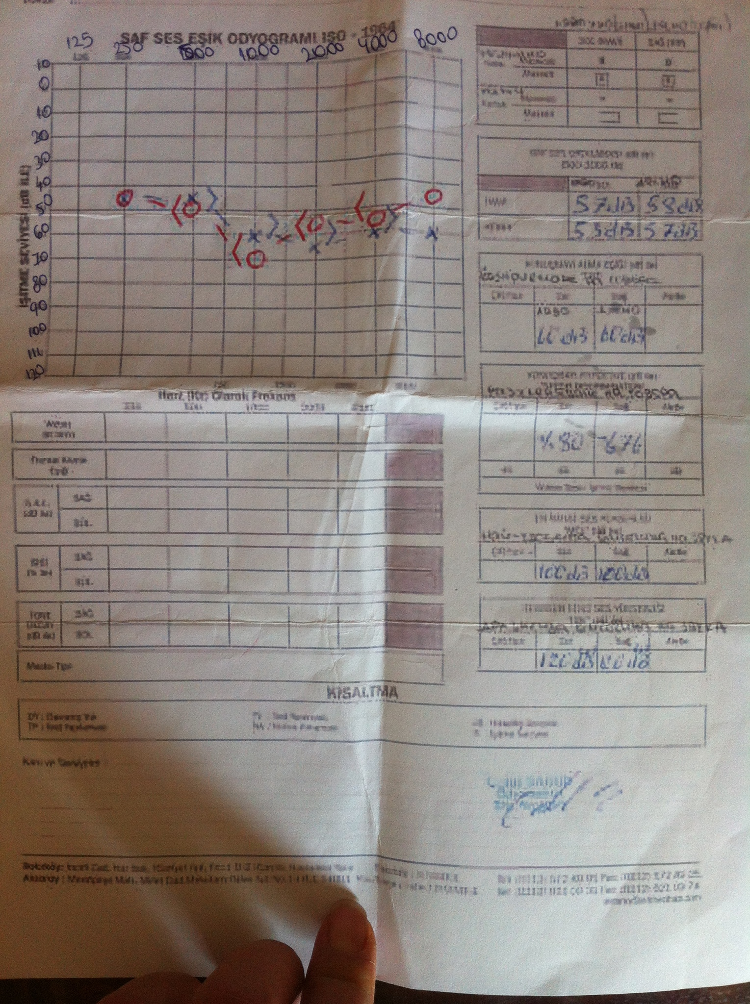 gkp0vb - İşitme testinden özür oranı hesaplanması