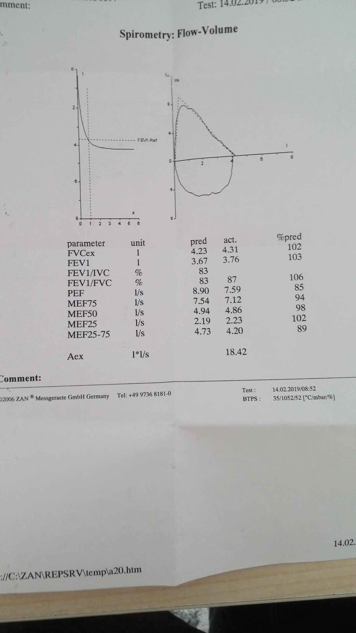 grB8A0 - Doktor astım dedi. SFT sonucunu yorumlar mısınız?