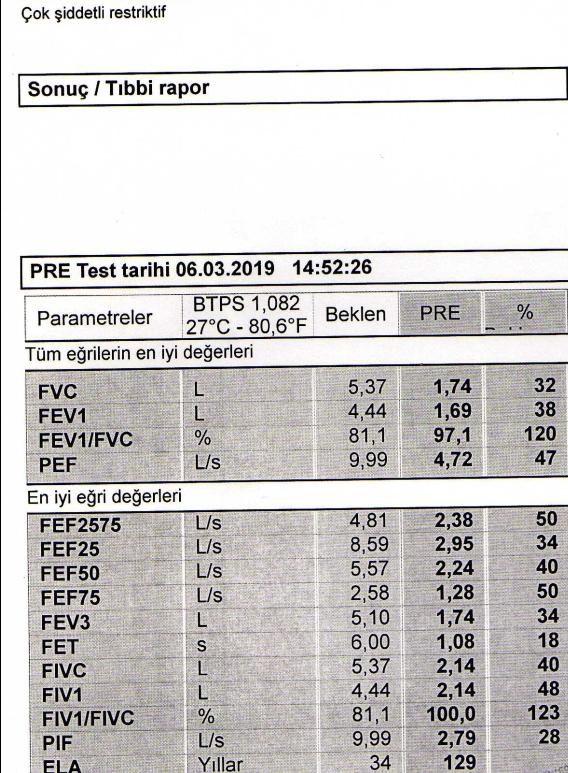 grQ5EO - SFT sonucuma göre yüzde kaç oran alabilirim?