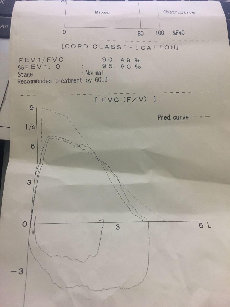 vZka26 - Solunum testine göre  hangi oranda rapor verilir?