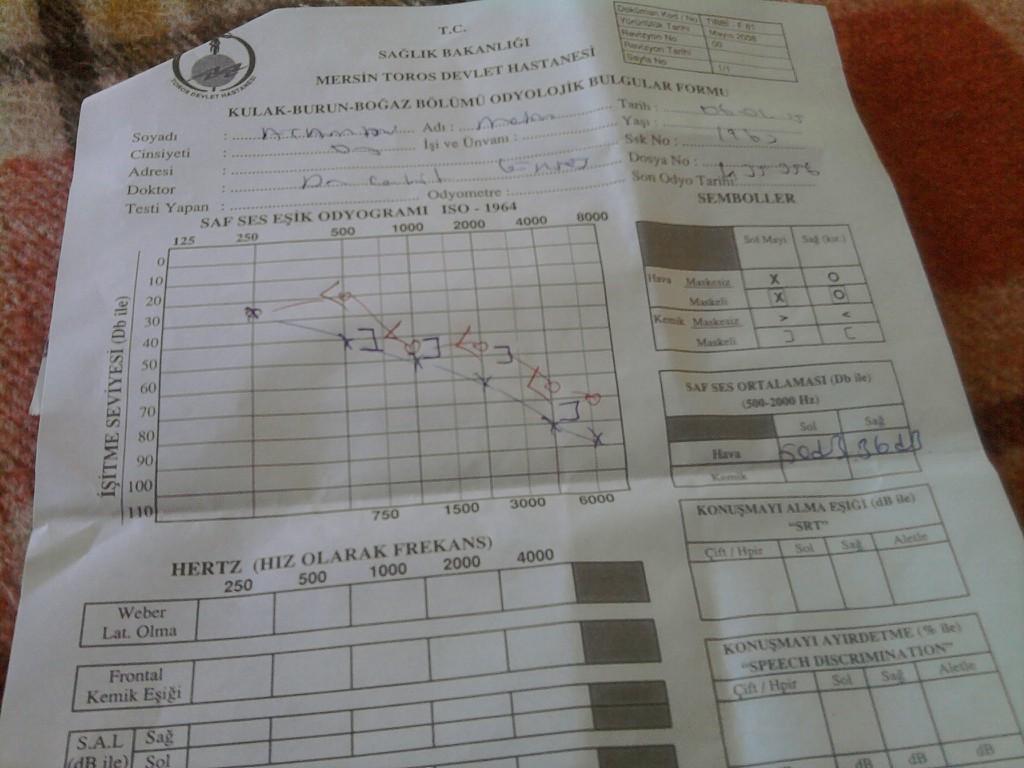 yMddjj - İşitme testinden özür oranı hesaplanması