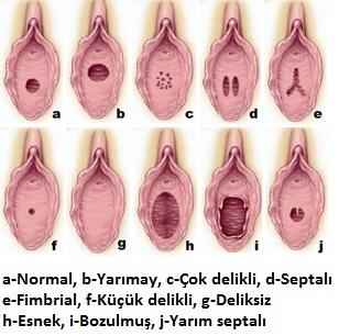 Zari Yırtılmis Vajinajla Yırtılmamis Vajina Arasındaki Fark Nedir
